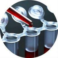 Аналіз на антимюллерів гормон - показники і причини відхилень