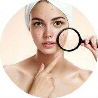 Що допомагає позбутися від прищів і їх слідів на шкірі