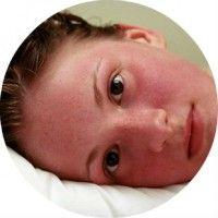 Що таке гіперемія шкіри і як її лікувати