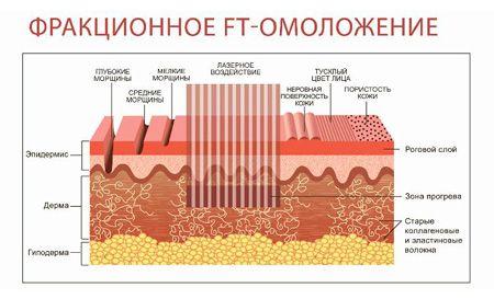 Різновиди фракційного лазерного омолодження