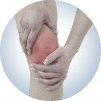 Як ефективно проводити лікування артриту в домашніх умовах