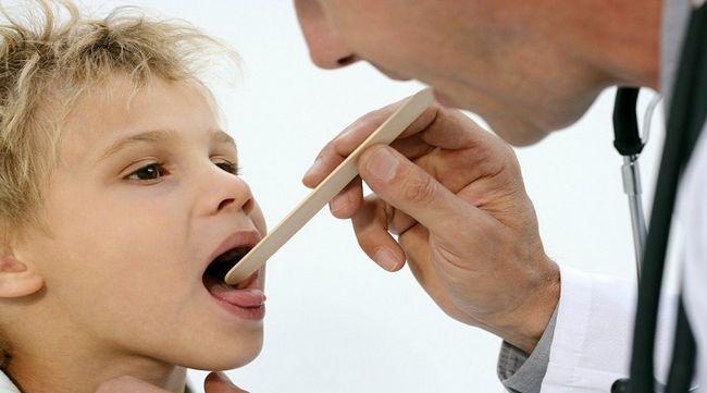 Як лікувати тонзиліт в домашніх умовах?
