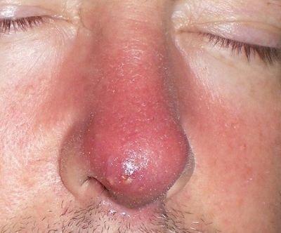 Фурункул на носі