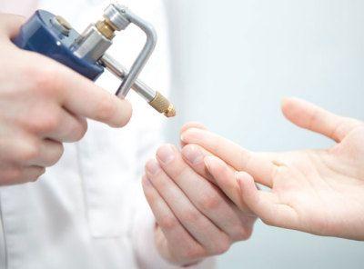 Як правильно позбутися бородавок на пальці руки?