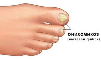 Лікування грибка нігтя