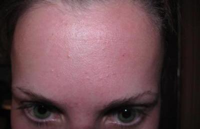 Дрібні прищі на обличчі як висип