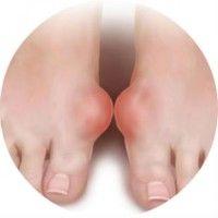 Як вилікувати кісточки на ногах народними засобами