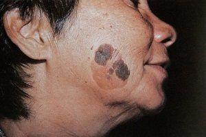 Як вивести старечі бородавки (вікові кератоми) народними засобами? Фото і лікування кератозу