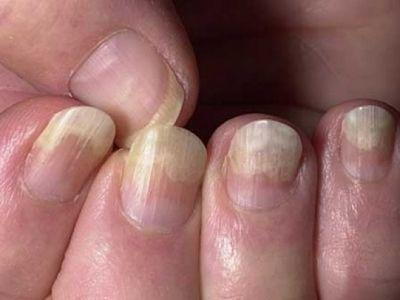 Ознаки грибка на нігтях