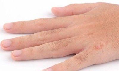 Бородавки на руках причини