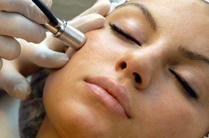 Лазерний пілінг обличчя - повний огляд косметологічної процедури. Відгуки