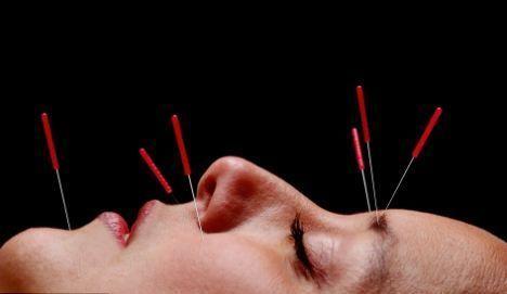 Лікування підвищеної пітливості за допомогою голковколювання