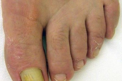 Флуконазол від грибка нігтів