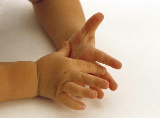 Ручки і долоні дитини потіють