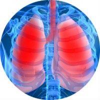 Перші ознаки, симптоми і лікування пневмонії