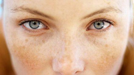 Пігментні плями на обличчі - причина виникнення