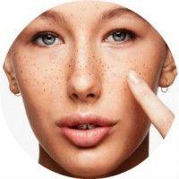 Пігментні плями на обличчі - причини їх появи, види і методи лікування