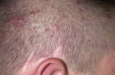 Прищі на голові в волоссі