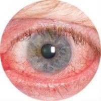 Причини і лікування червоних очей у дітей та дорослих