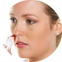 Причини носових кровотеч, перша допомога, лікування і профілактика