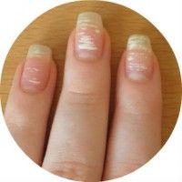 Причини появи на нігтях рук білих плям і смужок, і як позбавиться від них