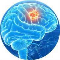 Ознаки інсульту у чоловіків і жінок, перша допомога та лікування