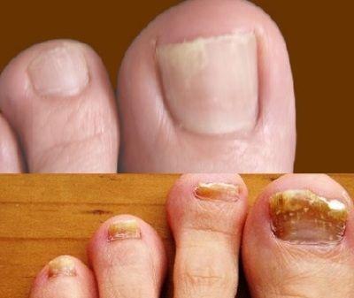 Формідрон від грибка нігтів