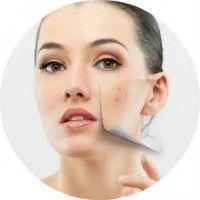 Рекомендації та протипоказання для ультразвукової чистки шкіри обличчя