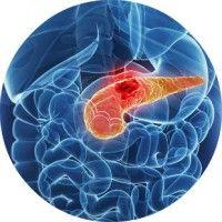 Симптоми, діагностика та лікування раку підшлункової залози