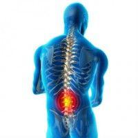 Симптоми і лікування анкілозуючого спондиліту
