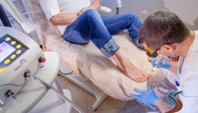 Лікування грибка нігтів
