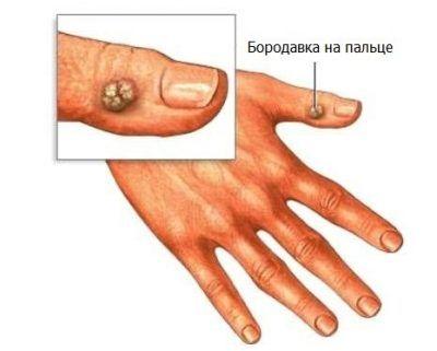 Чи знаєте ви, як видалити бородавку на пальці руки в домашніх умовах аптечними і народними засобами?